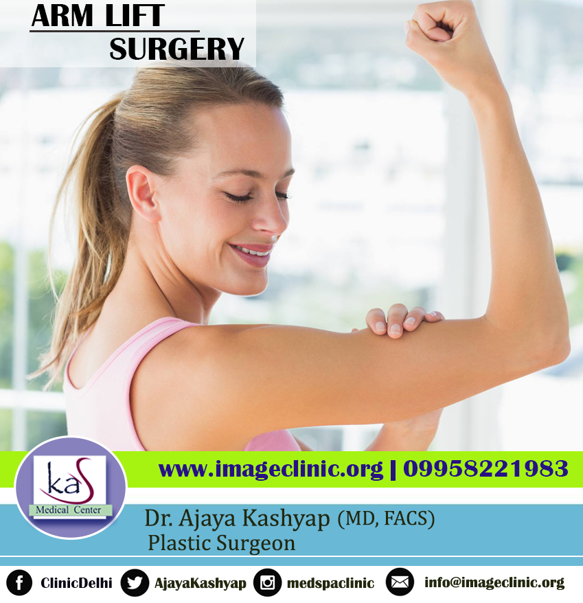 Arm Lift Surgery in India