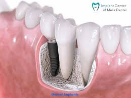 Dental Implant Financing Options